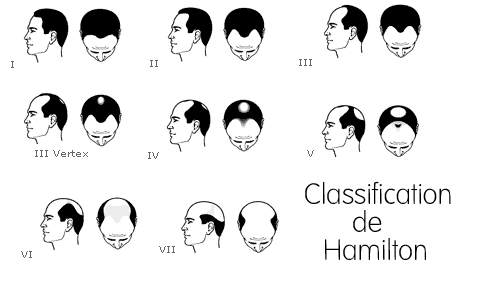 Classification d'Hamilton